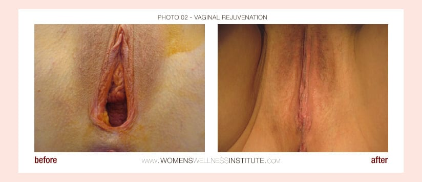 Vaginal Rejuvenation Before and After 2