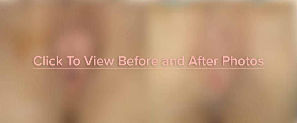Click Here to View Before and After Photos of Vaginoplasty