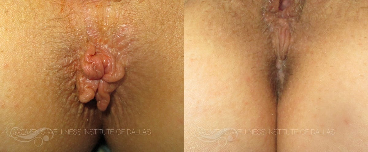 Hemorrhoid Treatment - Patient 3