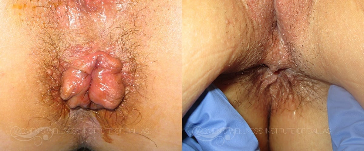 Hemorrhoid Treatment - Patient 4