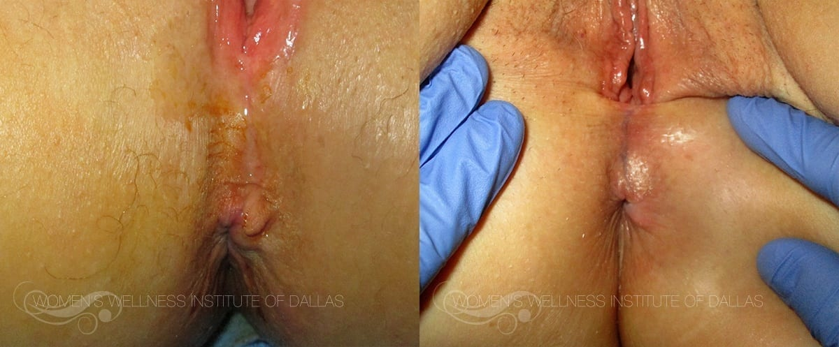 Hemorrhoid Treatment - Patient 5