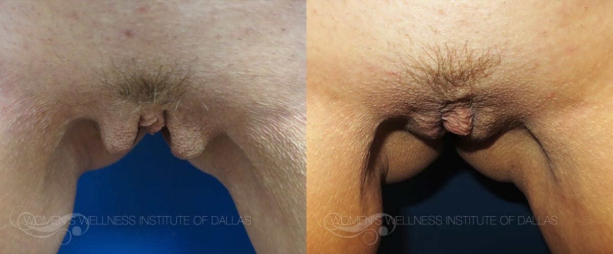 Labiaplasty Of The Majora Before And After Photo - Patient 10