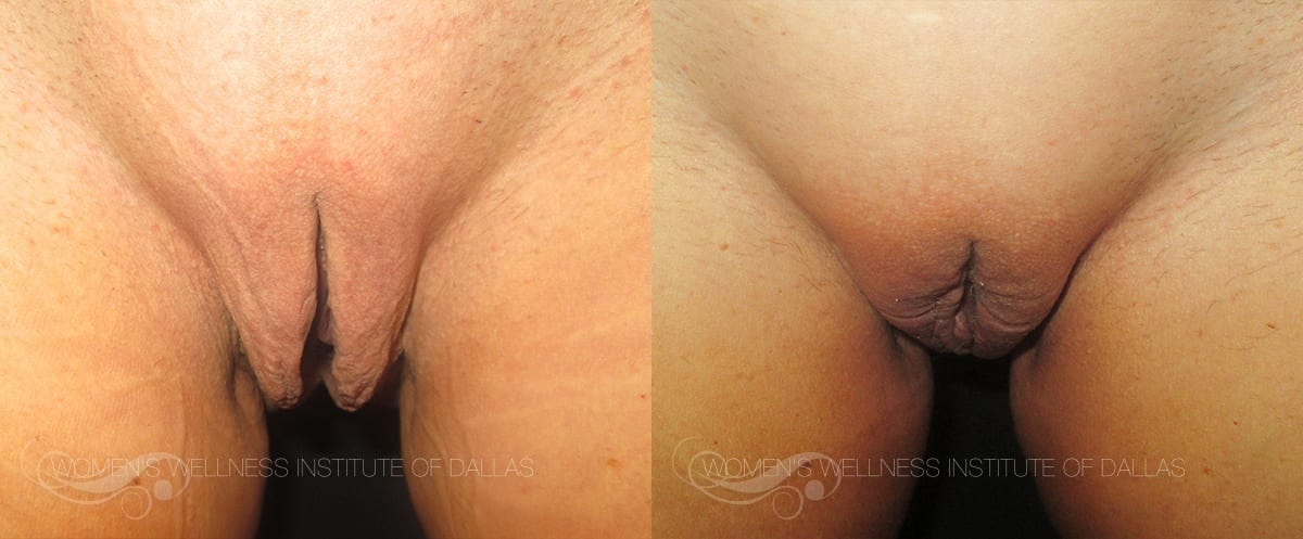 Labiaplasty Of The Majora Before And After Photo - Patient 4
