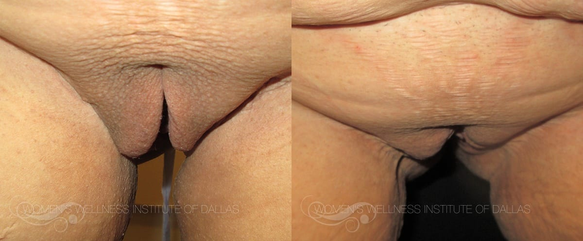 Labiaplasty Of The Majora Before And After Photo - Patient 5