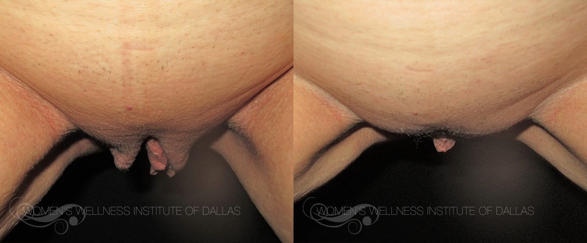 Labiaplasty Of The Majora Before And After Photo - Patient 7
