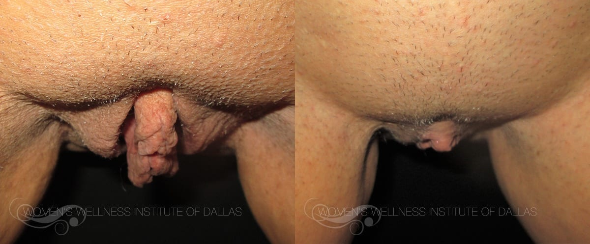 Labiaplasty Of The Majora Before And After Photo - Patient 8