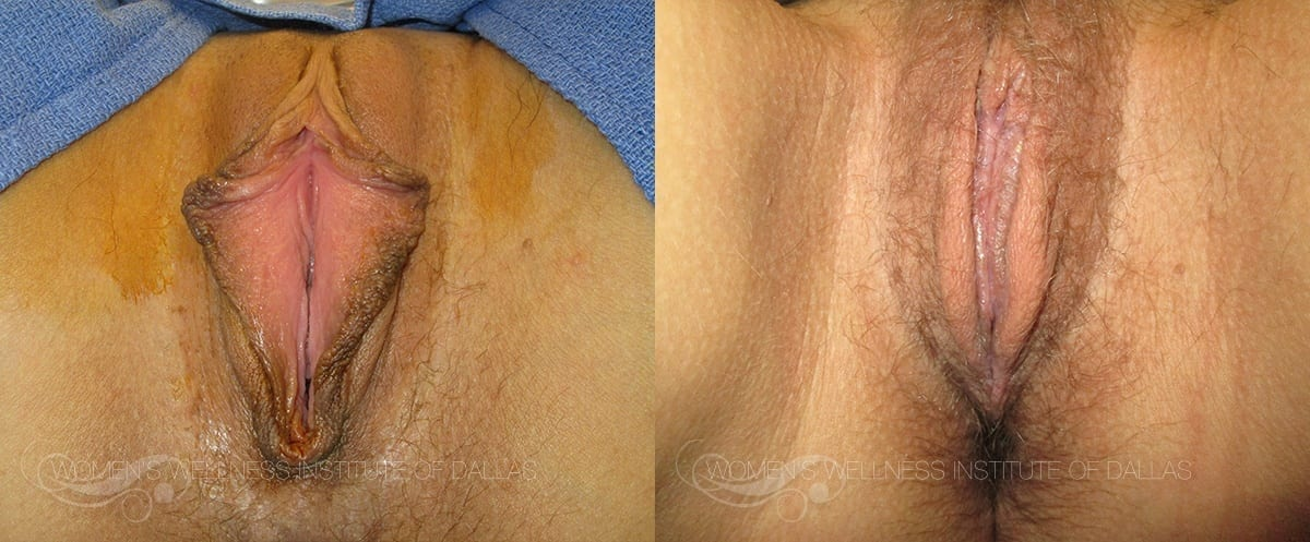Labiaplasty of the Minora Before and After Photo - Patient 22