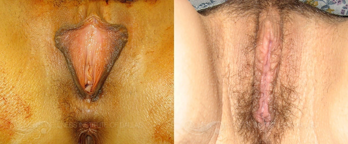 Labiaplasty of the Minora Before and After Photo - Patient 23
