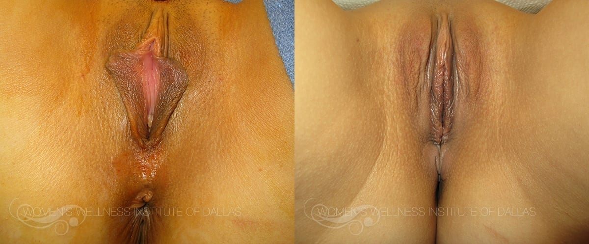 Labiaplasty of the Minora Before and After Photo - Patient 26