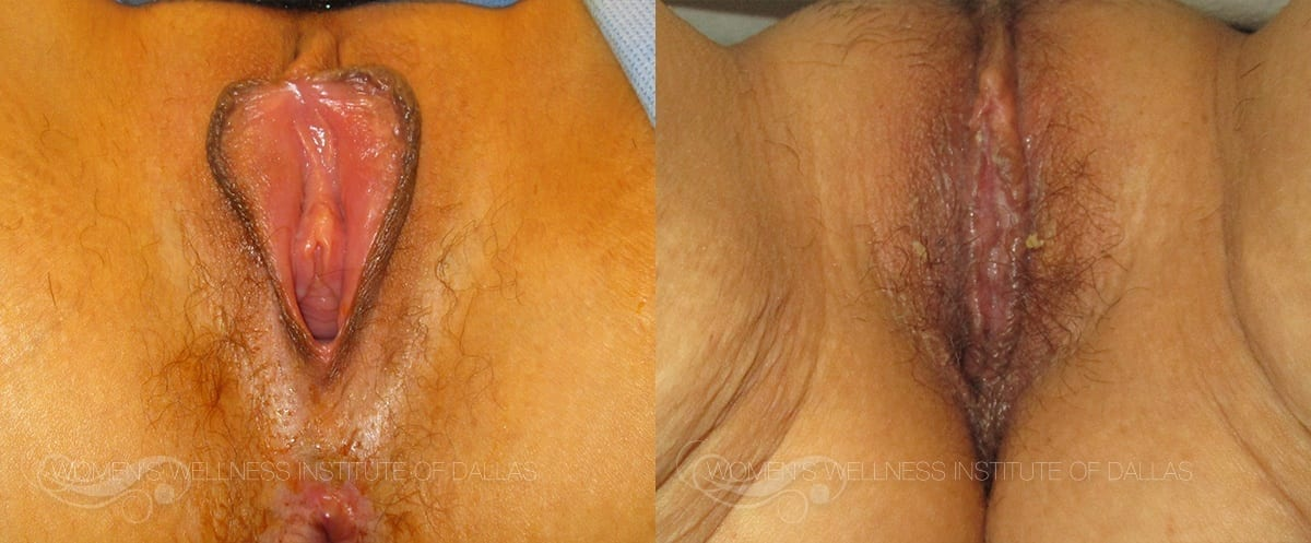 Labiaplasty of the Minora Before and After Photo - Patient 27