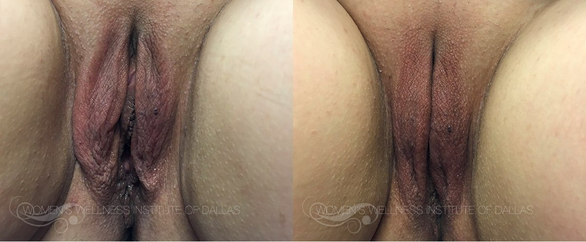 ThermiVA Before and After Photo Patient 3