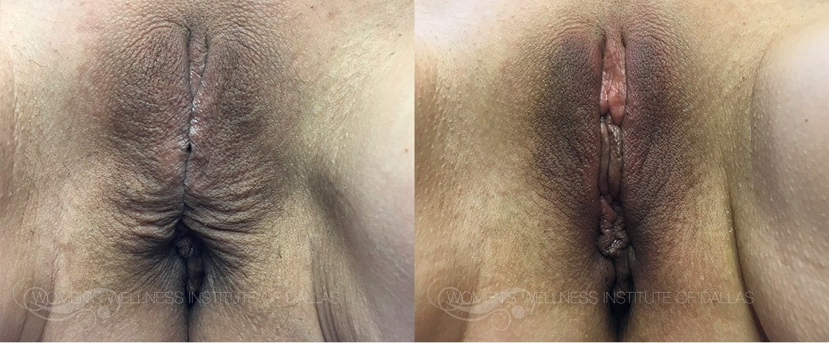 ThermiVa Before and After Photo Patient 8
