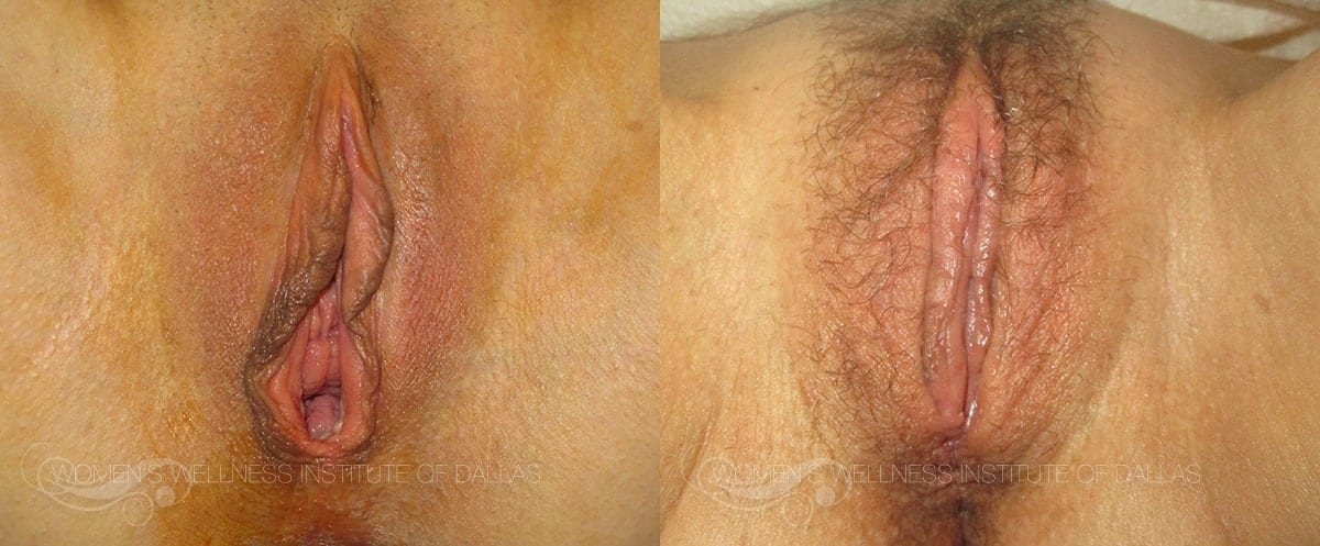 Vaginoplasty Before and After Photo - Patient 14