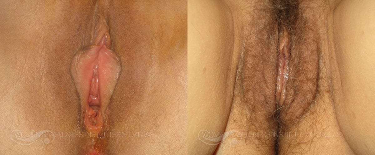 Vaginoplasty Before and After Photo - Patient 15