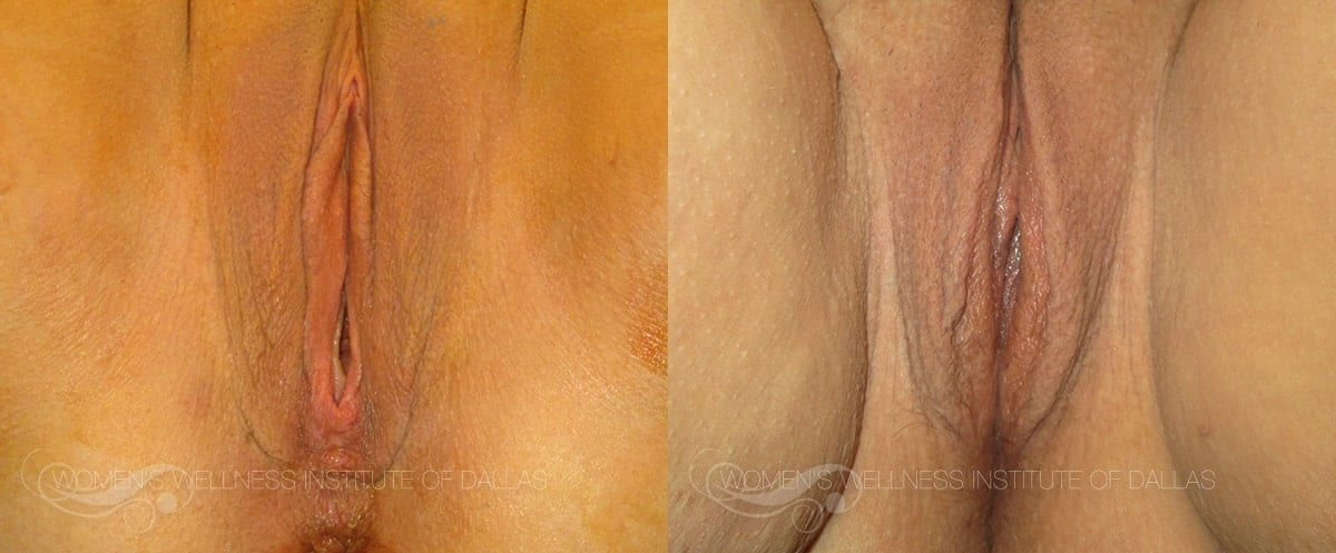 Vaginoplasty Before and After Photo - Patient 16
