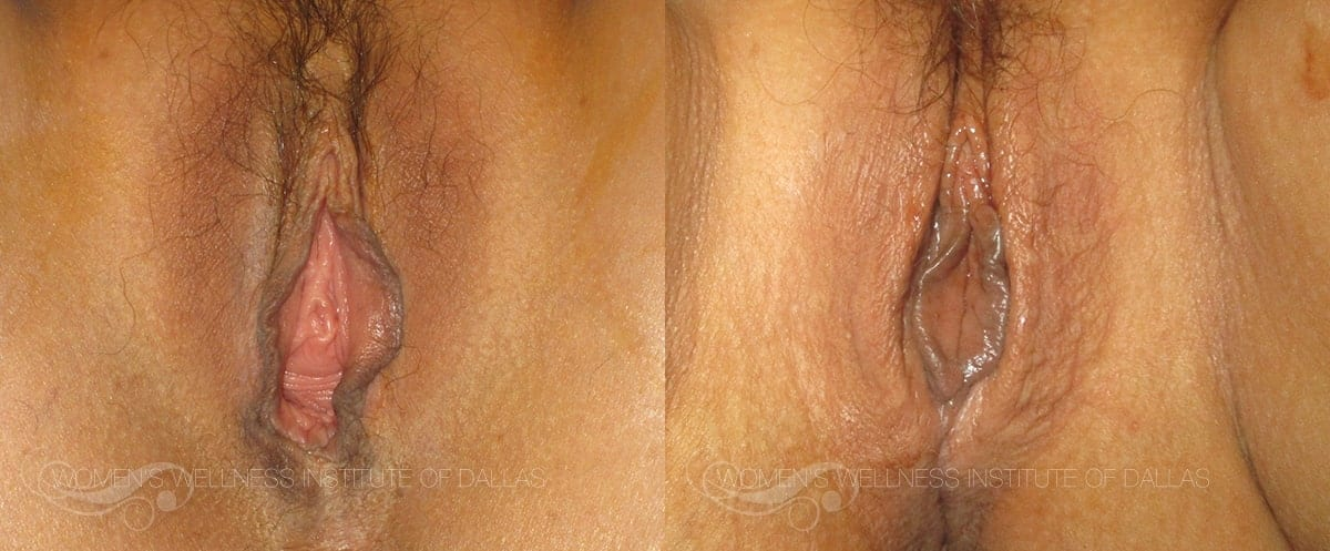 Vaginoplasty Before and After Photo - Patient 17