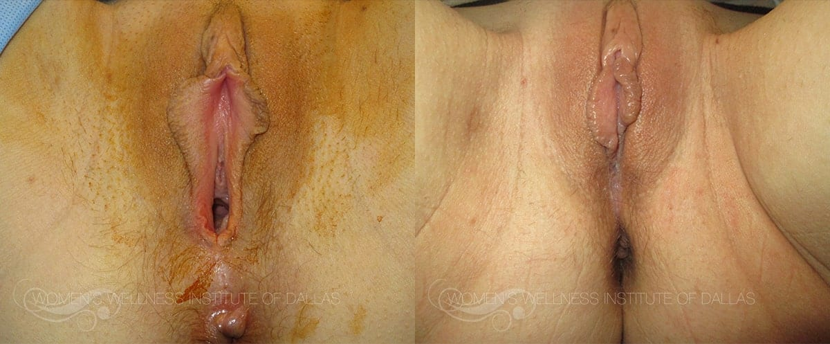 Vaginoplasty Before and After Photo - Patient 18