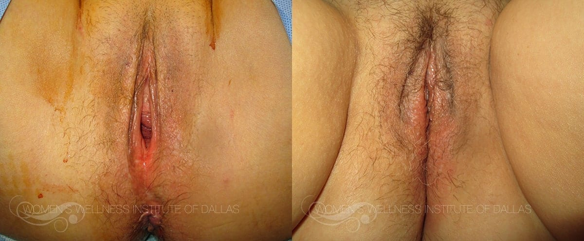 Vaginoplasty Before and After Photo - Patient 34