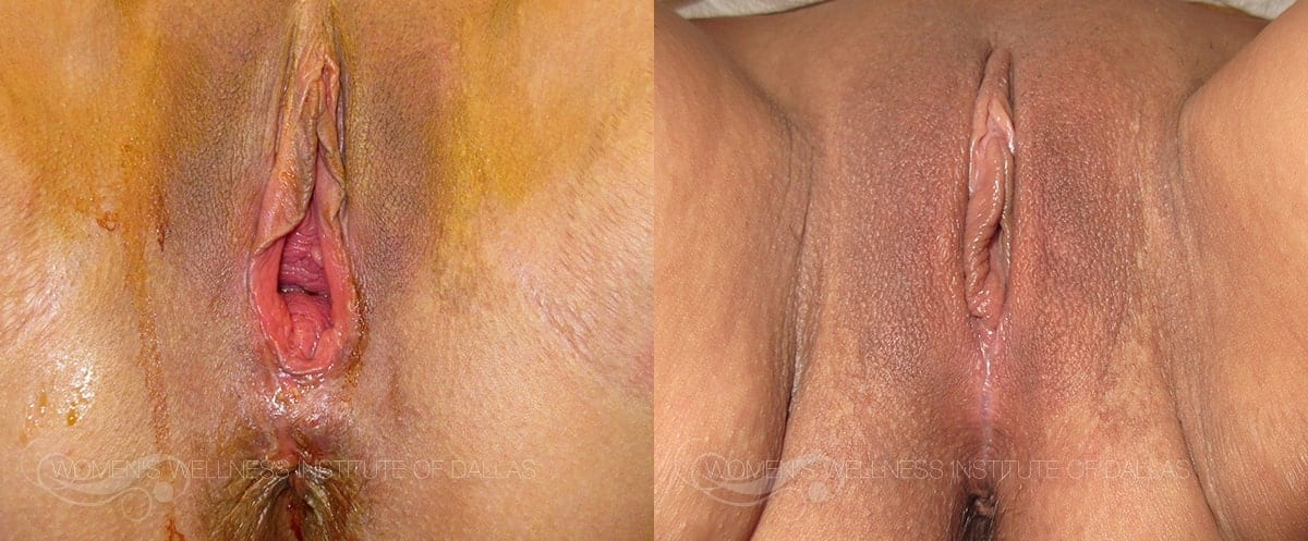 Vaginoplasty Before and After Photo - Patient 39