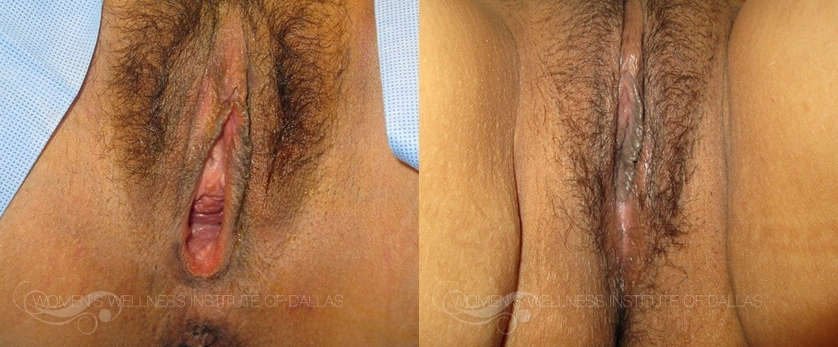 Vaginoplasty Before and After Photo - Patient 4