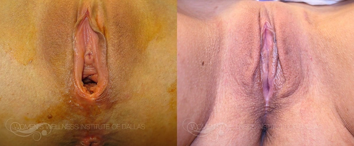 Vaginoplasty Before and After Photo - Patient 40