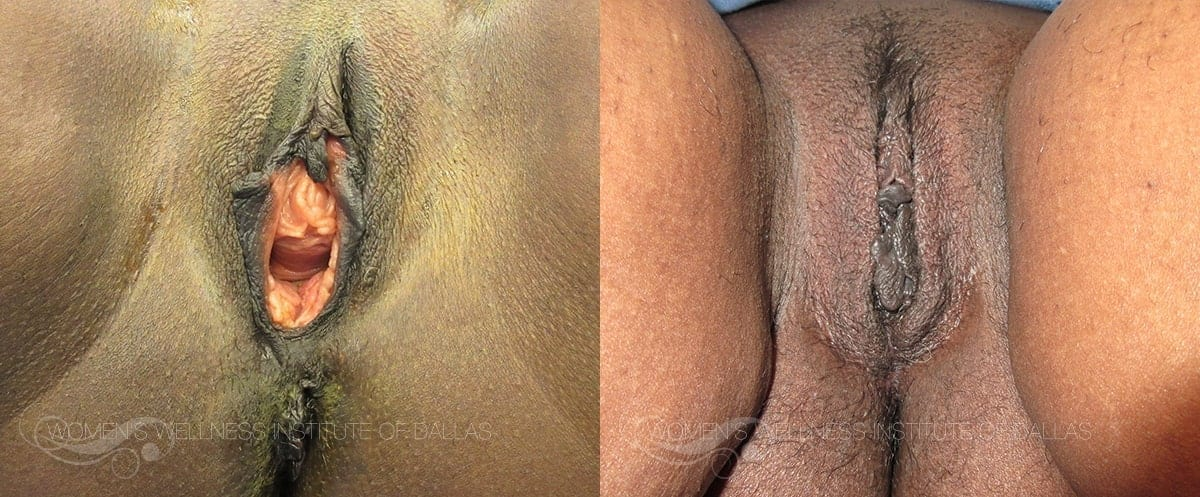 Vaginoplasty Before and After Photo - Patient 41