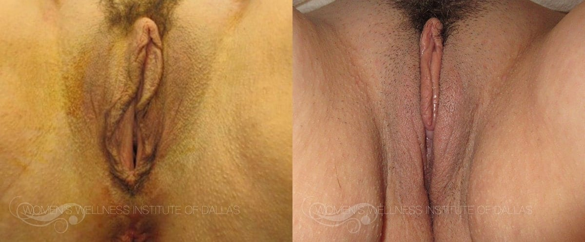 Vaginoplasty Before and After Photo - Patient 42