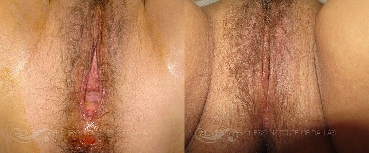 Vaginoplasty Before and After Photo - Patient 43