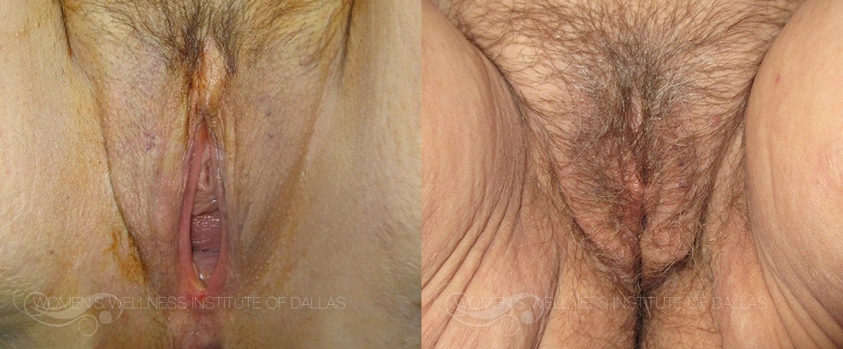 Vaginoplasty Before and After Photo - Patient 49