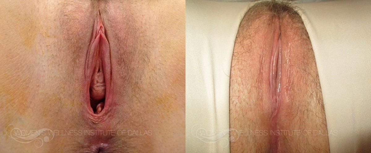 Vaginoplasty Before and After Photo - Patient 5