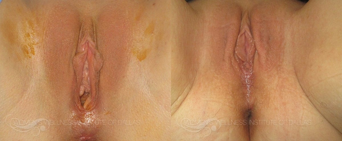 Vaginoplasty Before and After Photo - Patient 6