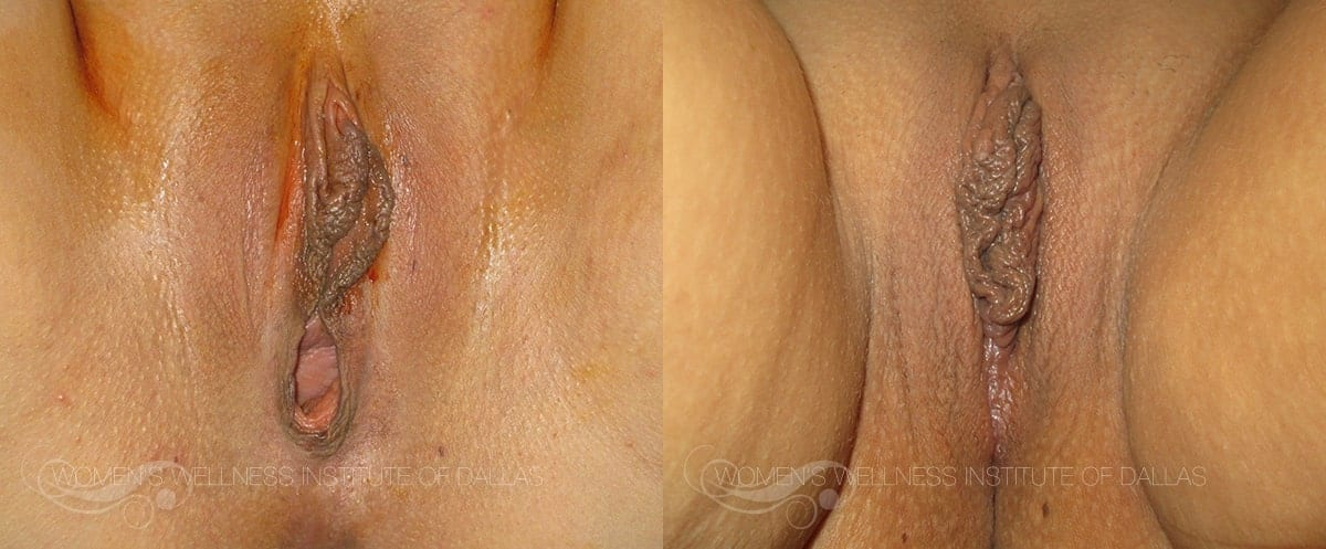 Vaginoplasty Before and After Photo - Patient 7